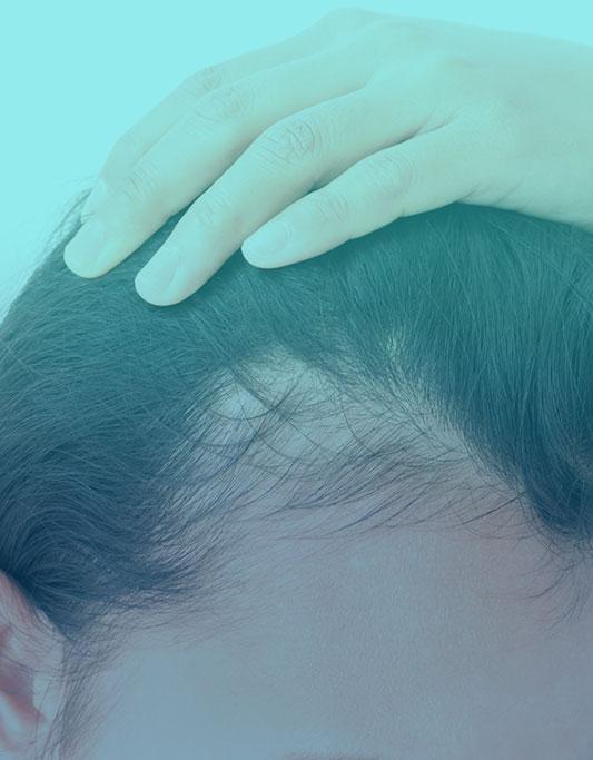 أسباب تساقط الشعر