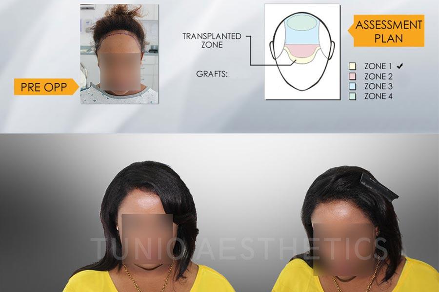 أماكن عمليات زراعة الشعر في غير فروة الرأس