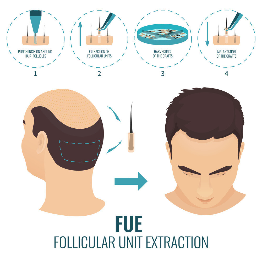 FUE Hair Transplant In Dubai