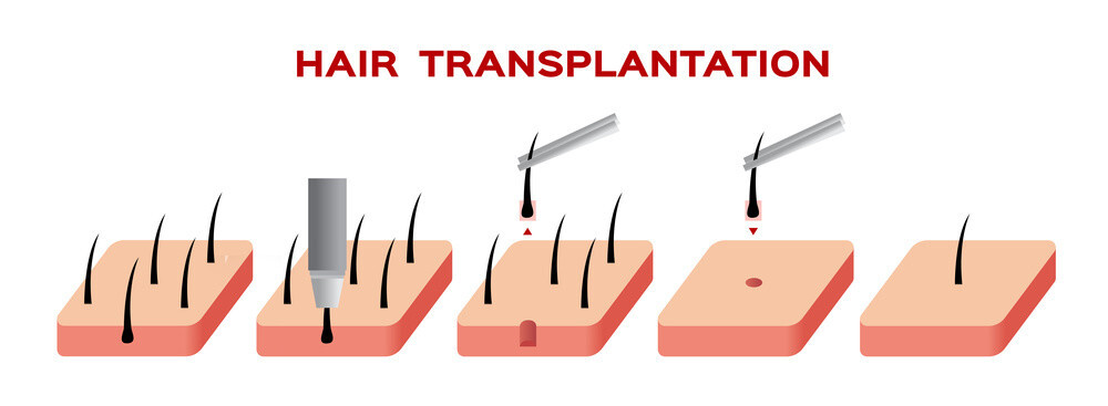 Hair Transplant Surgeon In UAE