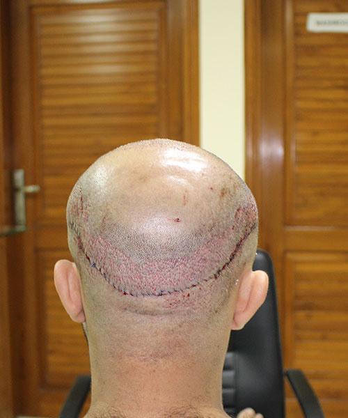 FUSS Hair Transplant
